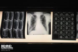 Psychiatrie V Germany - Lit up x-rays