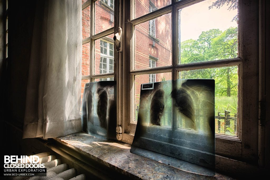 Salve Mater Psychiatric Hospital - X-rays in a window